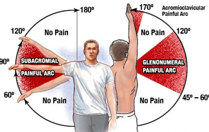 Sindromul conflictelor subacromiale – Testul de arc dureros
