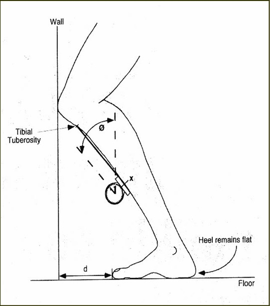 RPG for ankle joint dorsiflexion stiffness assessed using LUNGE TEST