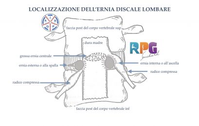 RPG in tratamentul herniei lombare