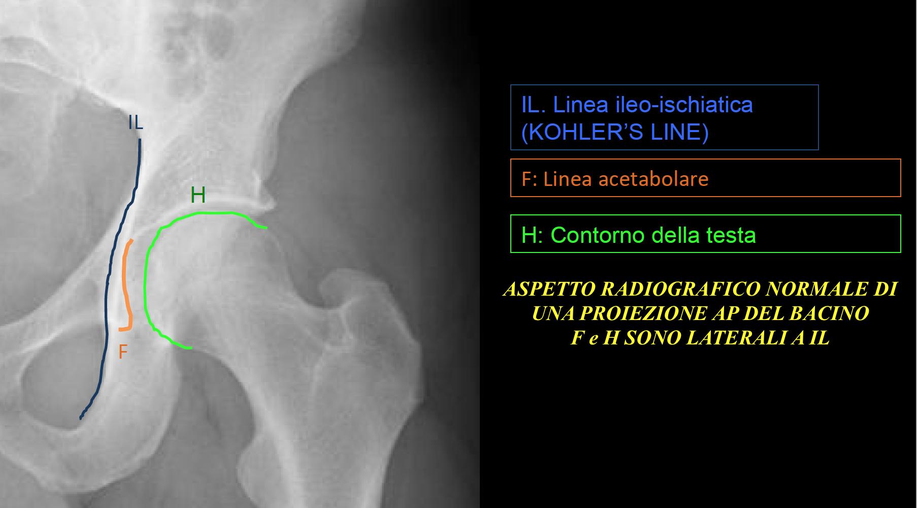 Coxalul profund – Protrusio Acetabuli – FAI PINCER